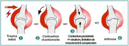 Mécanisme de l'arthrose