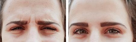 """Botox der Zornesfalte - Therapie des """"strengen Blickes"""""""