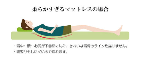 柔らかすぎるマットレスの寝姿勢