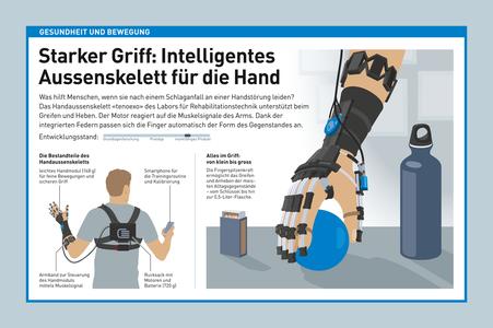 Infografik Gesundheit und Bewegung, Handaussenskelett © Michael Stünzi
