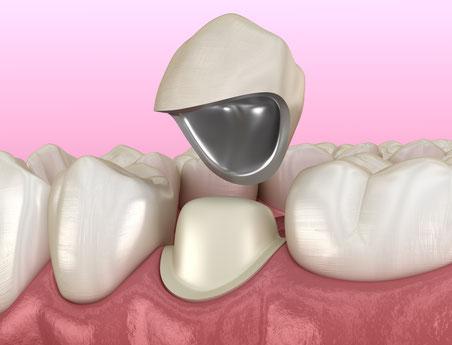 Die vom Zahntechniker hergestellte Krone ersetzt die verlorene Zahnhartsubstanz