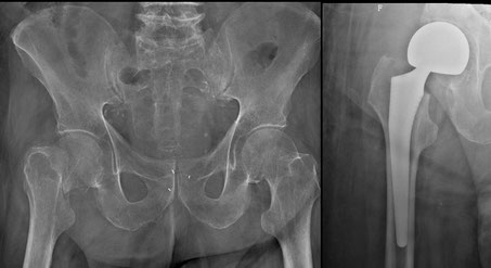 fracture col fémur, prothèse intermédiaire,chirurgie orthopédique Dr Rémi Toulouse