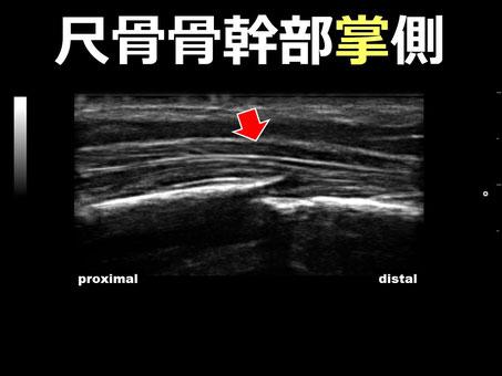 左橈尺骨骨幹部骨折 尺骨掌側 超音波画像 おおつか接骨院 豊田市の接骨院