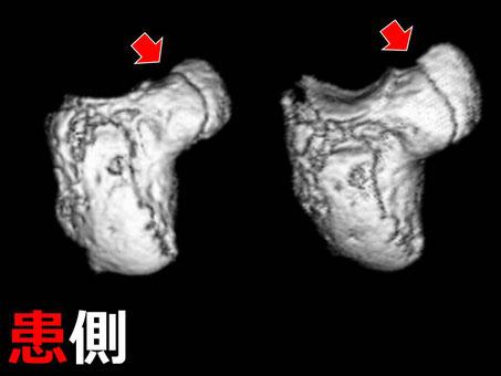 豊田市 接骨院 おおつか接骨院 有鈎骨鈎骨折 3D CT