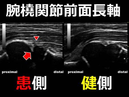豊田市 接骨院 おおつか接骨院 肘内障 超音波画像解説