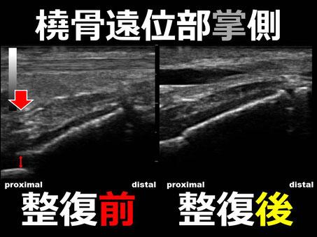 豊田市 接骨院 おおつか接骨院 スミス骨折 超音波画像
