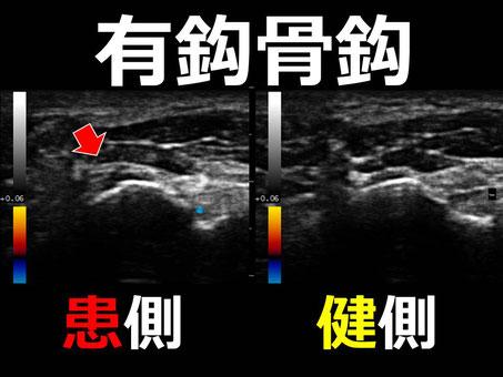 豊田市 接骨院 おおつか接骨院 有鈎骨鈎骨折 超音波画像