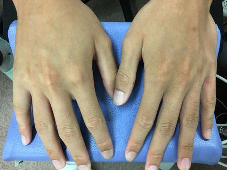 豊田市 おおつか接骨院 右小指基節骨基部骨折疑い 外観写真