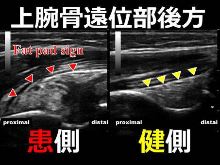 おおつか接骨院 超音波画像 上腕骨顆上骨折疑い
