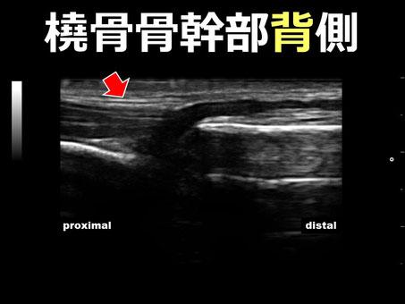 左橈尺骨骨幹部骨折 橈骨背側 超音波画像 おおつか接骨院 豊田市の接骨院