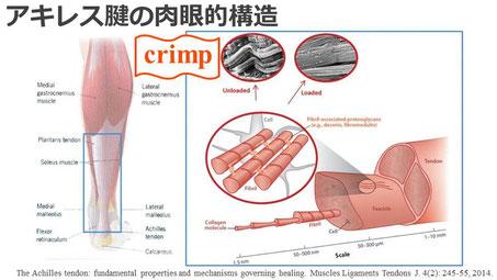 豊田市の接骨院 おおつか接骨院 アキレス腱断裂保存療法 スライド1