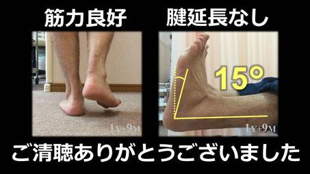 豊田市の接骨院 おおつか接骨院 アキレス腱断裂保存療法 スライド4