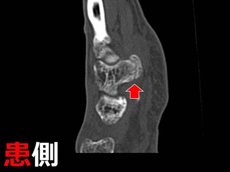 豊田市 接骨院 おおつか接骨院 有鈎骨鈎骨折 CT