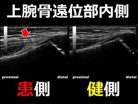 おおつか接骨院 超音波画像2 上腕骨顆上骨折疑い
