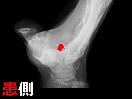 豊田市 接骨院 おおつか接骨院 有鈎骨鈎骨折 レントゲン3