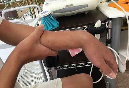 左橈尺骨骨幹部骨折 おおつか接骨院 豊田市の接骨院