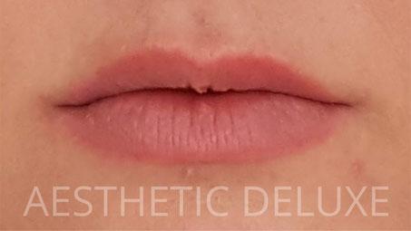 Lippen aufspritzen vorher nachher Bilder, vor der Behandlung, 1 ml Hyaluron