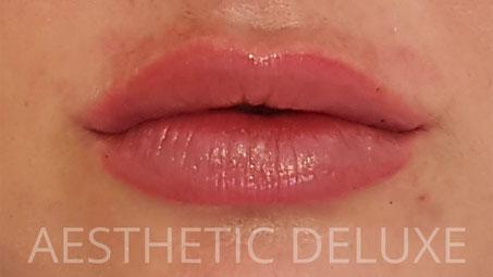 Lippen aufspritzen vorher nachher Bilder, nach der Unterspritzung mit 1 ml Hyaluron