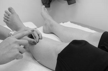 Akupunktur Geburtsvorbereitung Hebamme Julia Schuetz