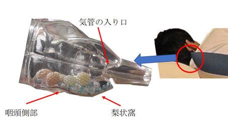 完全側臥位では咽頭側部空間と梨状窩に飲食物が貯まる。嚥下反射がおこるまで誤嚥しない