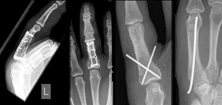 Bild: Beispiele für operative Versorgungen von Fingerfrakturen
