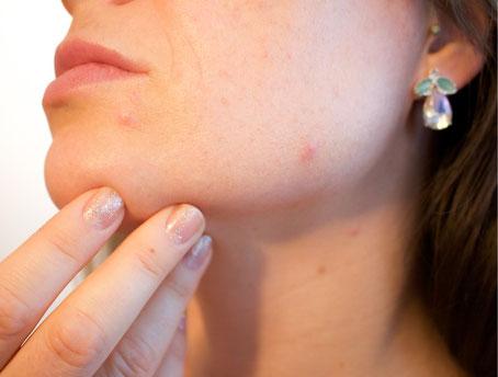 Haut unreinheiten unreine Haut Pickel Akne Mitesser Vreen Skin+