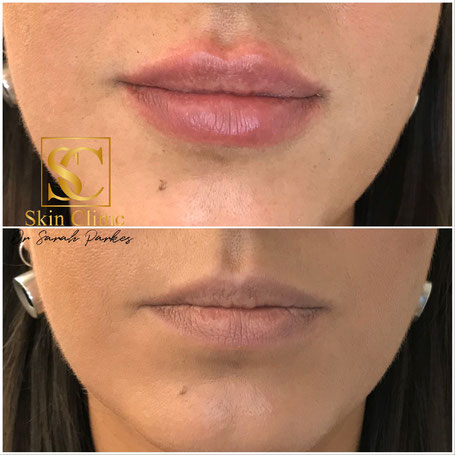 Dr Sarah Parkes Skin Clinic before and after lip filler picture