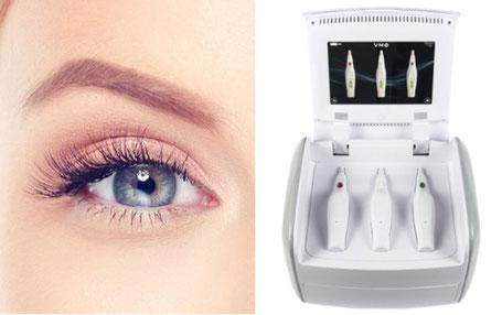 Kosten PlexR Augenlidstraffung ohne OP Plasmalifting Plasmapen günstig in Köln