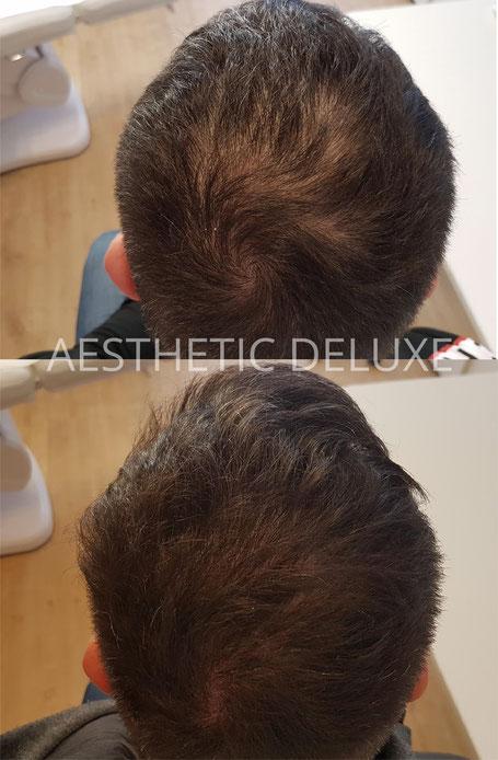 PRP Haare Mesohair Haarausfall Haarwachstum Eigenbluttherapie