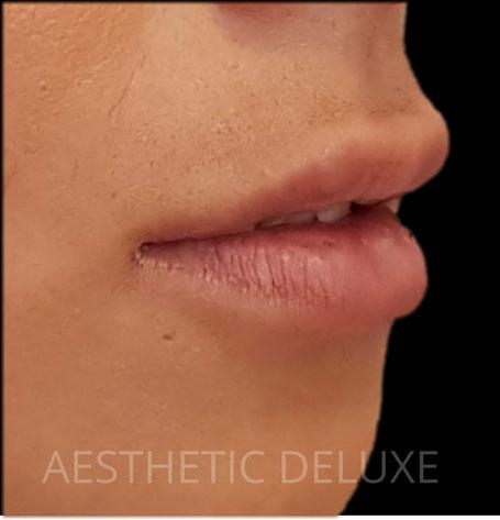 Lippen aufspritzen vorher nachher Bilder, Foto von der Seite