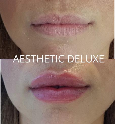 vorher nachher Bilder Lippen aufspritzen, Lippenvolumen, Lippenkontur, Lippenkorrektur günstig in Köln