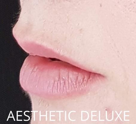 Lippen aufspritzen vorher nachher Bilder, vor der Behandlung, von der Seite