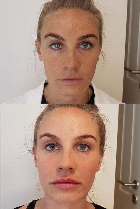 Lippen aufspritzen Lippenvergrößerung, Lippenkontur, Lippenkorrektur günstig in Köln