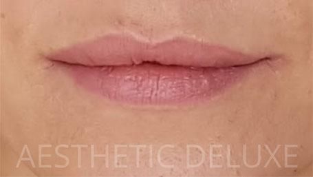 Lippen aufspritzen vorher nachher Bilder, schmale Lippen nach dem Aufspritzen mit 1 ml Hyaluron