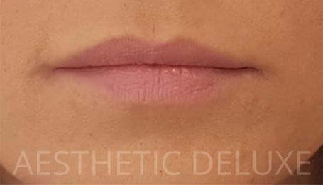 Lippen aufspritzen vorher nachher Bilder, Foto vor dem Aufspritzen
