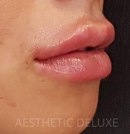 Lippen aufspritzen vorher nachher Bilder, Seitenansicht, nach der Unterspritzung mit 1 ml Hyaluron