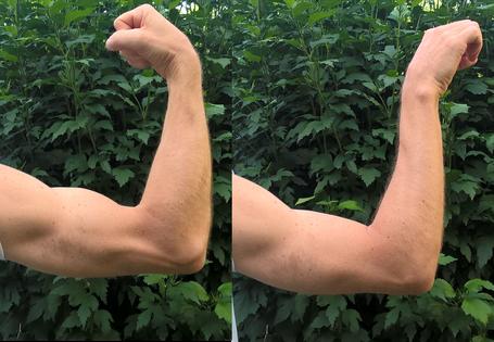 examen rupture biceps, pronosupination, dr Rémi, Toulouse, chirurgie orthopédique