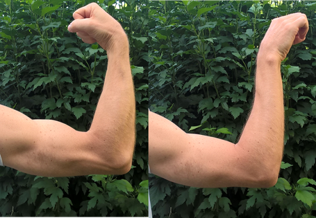 examen desinsercion biceps, pronacion supino, dr Rémi, Toulouse, cirugia ortopedica traumatologie Croix du Sud