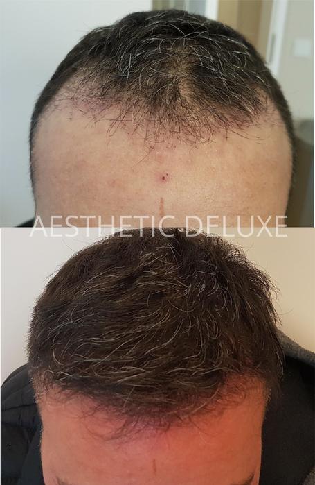 PRP Haare PRP Hair vorher nachher Bilder Haarausfallbehandlung