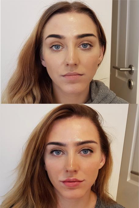 Lippen aufspritzen, Lippenvolumen, Lippenkontur, Lippenkorrektur günstig in Köln