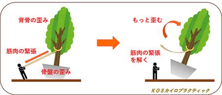 骨盤、背骨の歪み、筋肉の緊張は傾いた土台と木を支える人