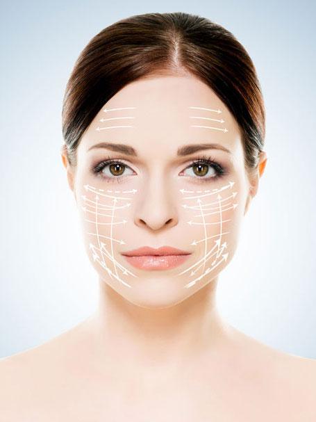 Behandlungsanalyse beim Fadenlifting (Face-Lifting) im Gesicht