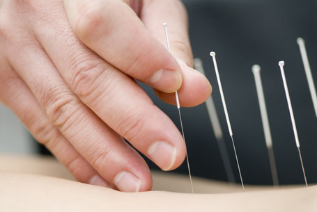 Acupunctuur naalden