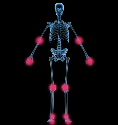 Skizze eines Menschen mit den für einen Gichtanfall typischen Gelenken.