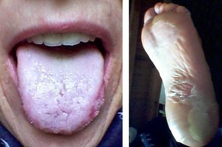 Mucite et syndrome main-pied au grade 2 avec cloques et desquamation....