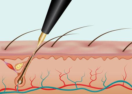 Електролиза - малка игличка се вкарва в пората, от която излиза косъма до самият му корен и се пуска енергия, в зависимост от методът електролиза, който е избран