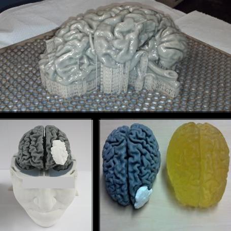 3D-Drucken, Gehirnmodell, Kopfmodell, Rapid-Prototyping