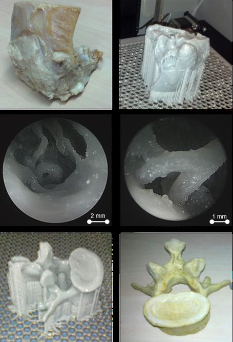 künstliches Felsenbein, Rapid-Prototyping, Steigbügel, Wirbelknochen