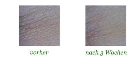 eye cream forte hautelastizität weniger falten dermatologisch bestätigt