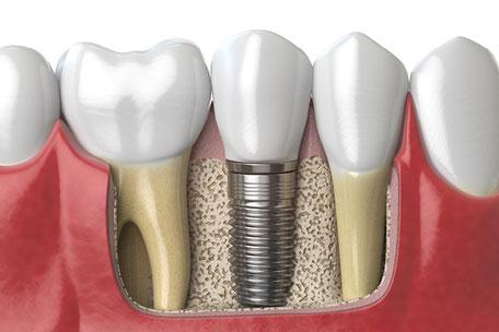 Zahnarztpraxis Hugo Teister in Gießen - Ihr Zahnspezialist für Implantate